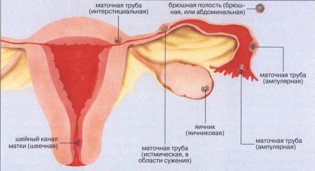 Признаки маточного кровотечения