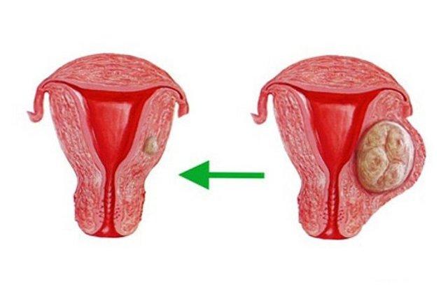Что такое киста эндоцервикса