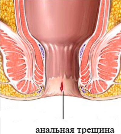 Кровотечение из заднего прохода: лечение, причины и профилактика