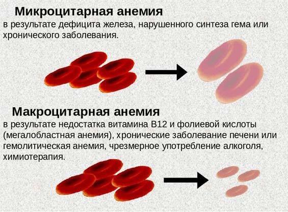 Макроцитарная и микроцетарная анемия: причины, лечение микросфероцитарной патологии