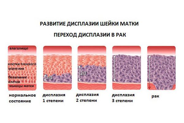 Лечение дисплазии шейки матки народными методами