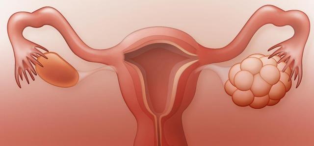 Дриллинг яичников: что это такое, операция, восстановление