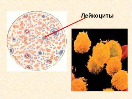 Лейкоциты у женщин: какая норма в крови и причины отклонений