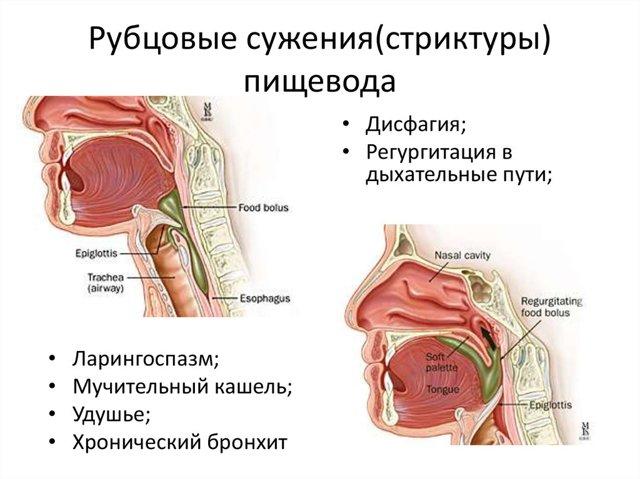 Стеноз пищевода: лечение народными средствами, назначаемые препараты, хирургические методы