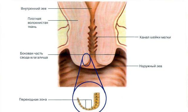 Симптомы и лечение эрозии шейки матки