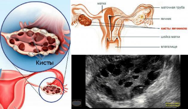 Резекция яичника: что это такое, восстановление и последствия, отзывы