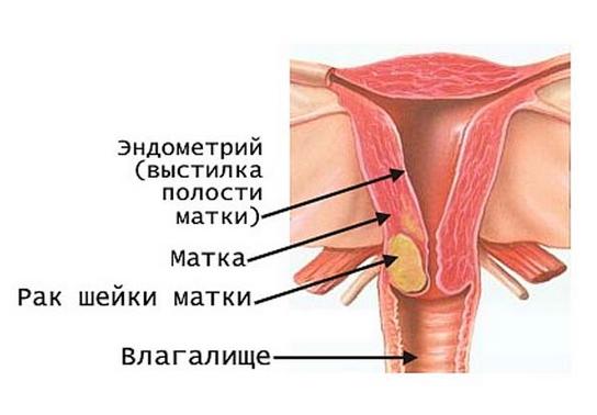 Что такое рак шейки матки