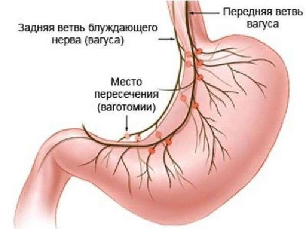 Атония желудка: что это, причины, симптомы, методы диагностики и лечение