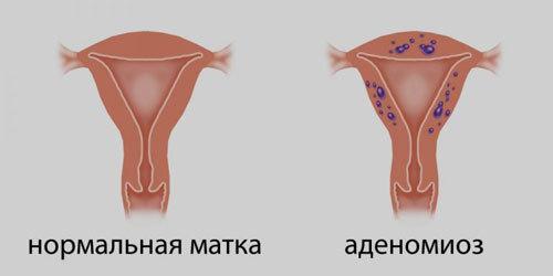 Что такое утолщение стенок матки