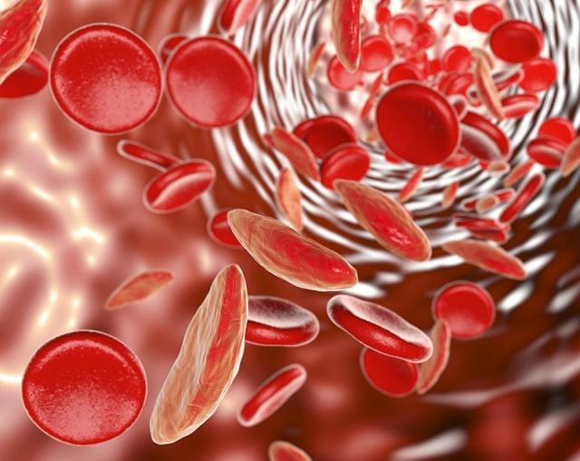 Анемия – что это такое и что ее вызывает