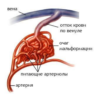 Артериовенозная мальформация сосудов головного мозга и ее лечение