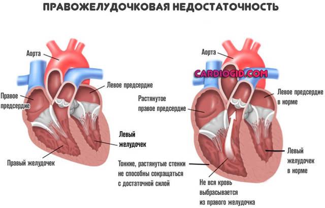Как укрепить сердечную мышцу и сердце в домашних условиях