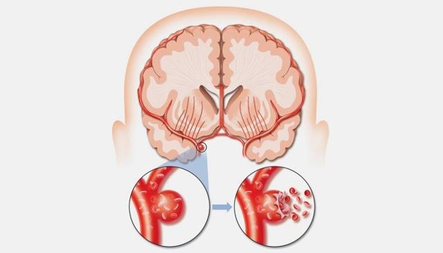 Аневризма сосудов головного мозга: симптомы, лечение, последствия, операция по удалению