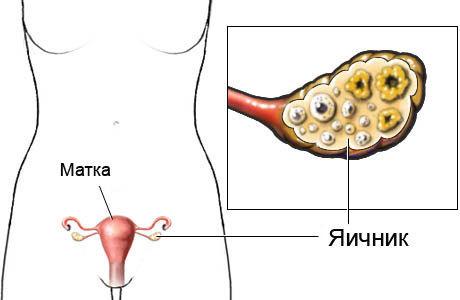 Яичники: расположение, строение, функции, заболевания