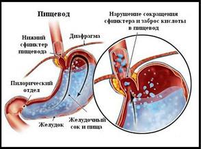 Рефлюкс эзофагит 1, 2, 3, 4 степени: что это такое, симптомы и лечение