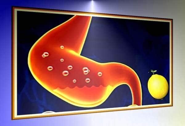 Не работает желудок: что это значит, причины, как запустить, диагностика