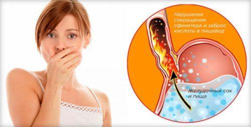 Симптомы гастрита с повышенной кислотностью желудка: как распознать болезнь