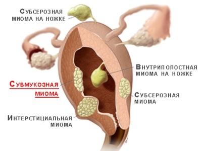 Лечение субмукозной миомы матки без операции