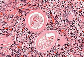 Текома яичника: причины, симптомы, диагностика и методы лечения