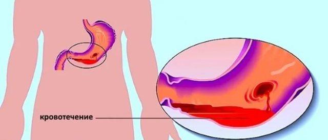 Кровотечение при язве желудка: причины, симптомы, лечение, диета, прогноз