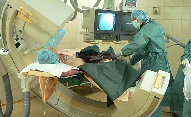 Как проверить сосуды головного мозга, головы и шеи (методы диагностики)