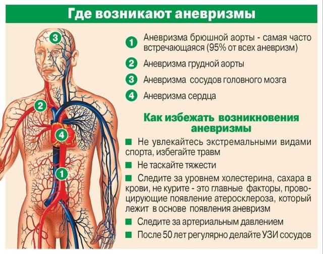 Аневризма сосудов: причины и признаки, диагностика, виды и способы лечения