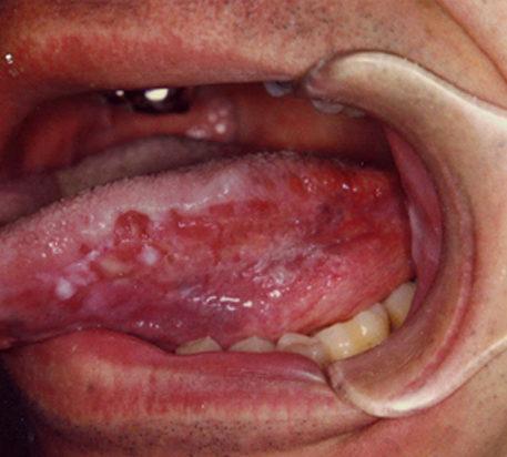 Сифилис на языке: как выглядит, фото, признаки и симптомы