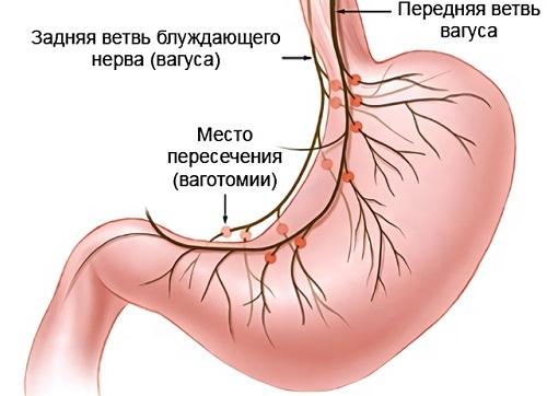 Открытая язва желудка: симптомы и признаки, методы лечения, диета, операция