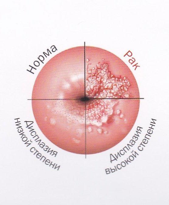 Что такое неоплазия шейки матки