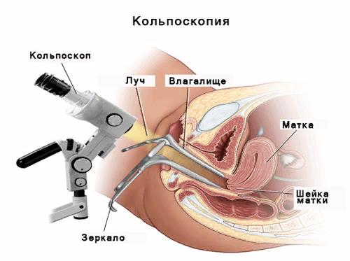Стационарный эндоцервикоз