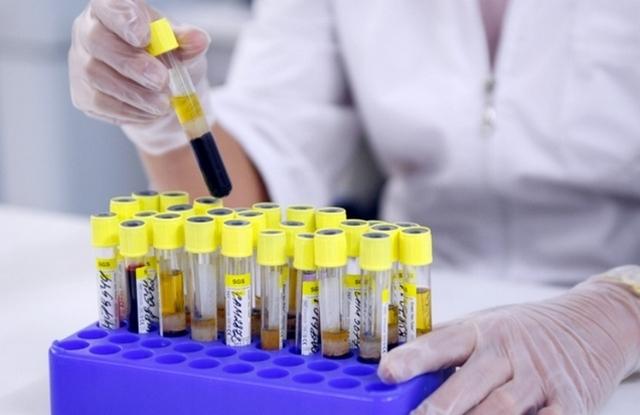 Коагулограмма: норма и расшифровка показателей этого анализа крови