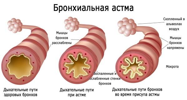 Ременс при климаксе: капли и таблетки
