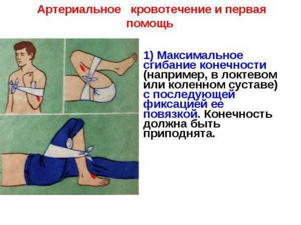 Кровотечения: классификация, причины, наложение жгута и лечение