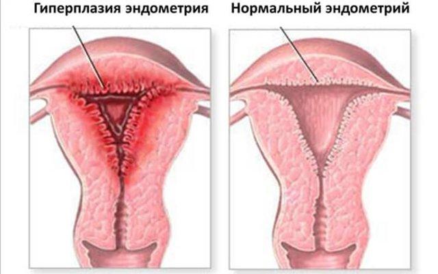 Признаки гиперплазии эндометрия