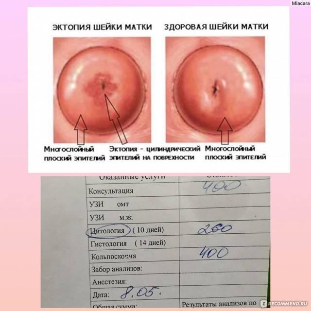 Что такое эктопия цилиндрического эпителия