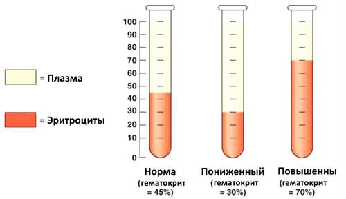 Причины пониженного гематокрита крови: что значит, когда он ниже нормы
