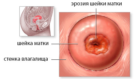 Радиоволновая коагуляция шейки матки