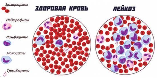 Анализ крови при лейкозе: нормальные показатели, как сдавать