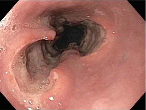 Эрозивный дистальный эзофагит: что это такое, причины, симптомы и методы лечения