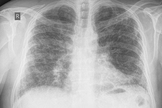 Кашель при сердечной недостаточности: симптомы и механизм развития