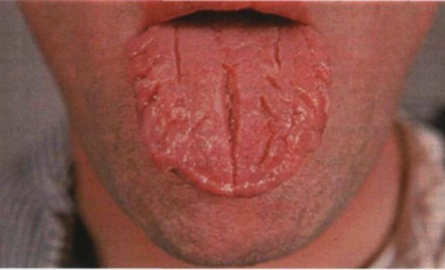 Сифилисный шанкр (твердый): как выглядит у мужчин и женщин, когда появляется