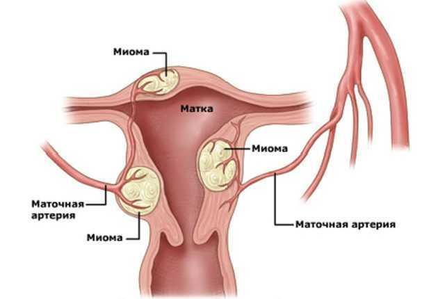 Месячные при миоме матки: сколько длятся, может ли быть задержка