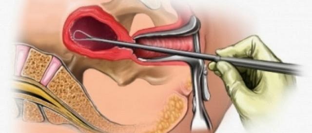 Эндометриоз брюшины малого таза
