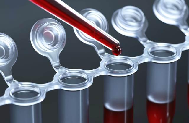 Анализ крови на СОЭ: норма и расшифровка, что значит высокий показатель