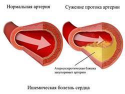 Лечение порока сердца: как его лечить и когда нужна операция