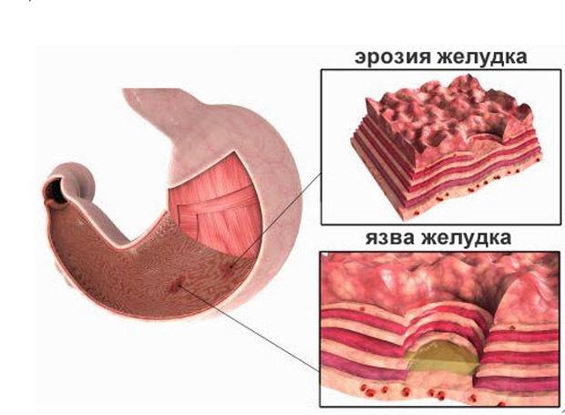 Чем лечить эрозивный гастрит желудка: лекарства и препараты, способные нормализовать состояние, примеры схем терапии