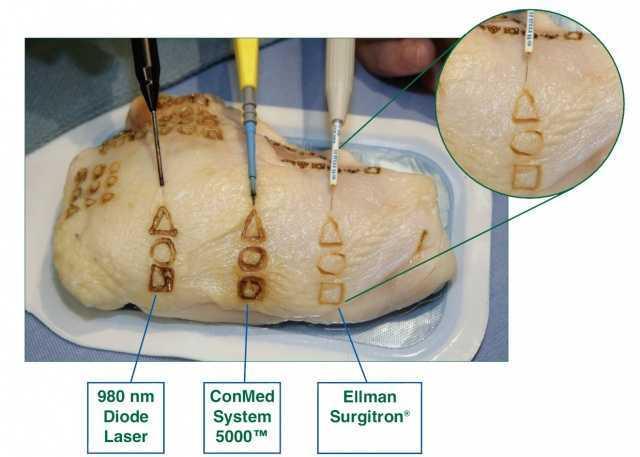 Радиохирургическое лечение шейки матки