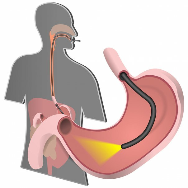 Симптомы язвы пищевода: какие они на ранней стадии и при перфорации, методы диагностики