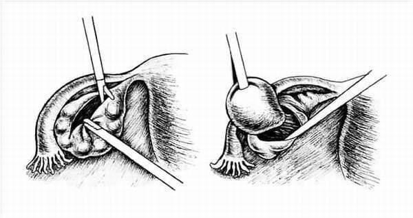 Цистэктомия яичника: показания, подготовка, методы проведения, реабилитация