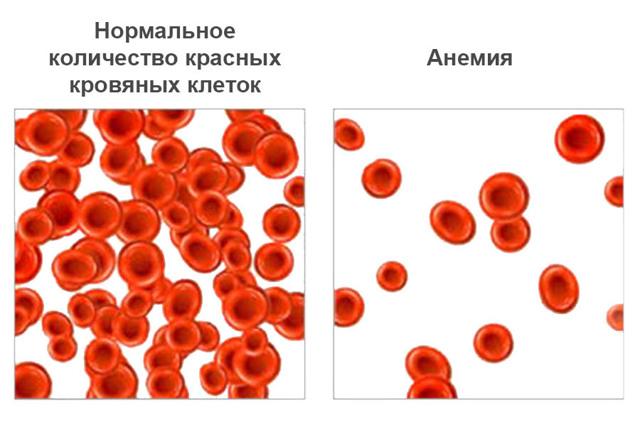 Причины повышенного содержания тромбоцитов в крови